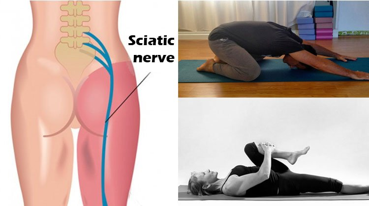 11 Physical Therapy Exercises for Sciatica - No Pain in 15 minutes (with videos) - The Health Science Journal