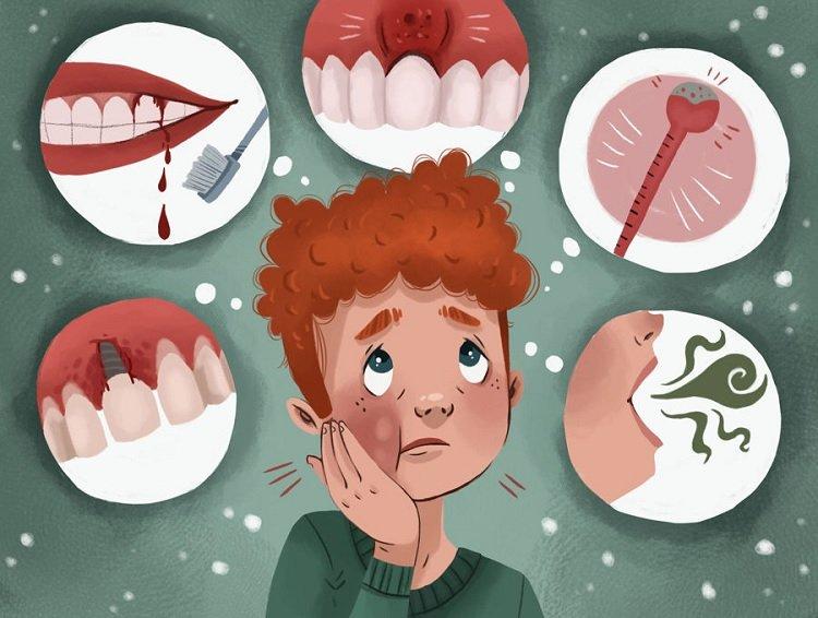 Gum Disease