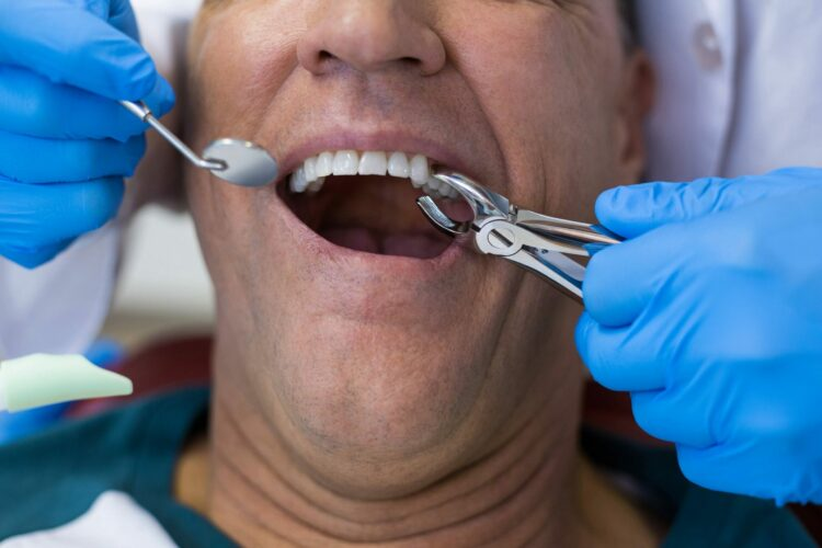 Tooth extraction dentist