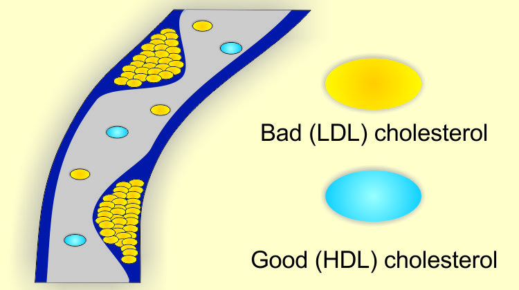 an analysis of low density lipoprotein in good and bad cholesterol in the body Cholesterol is a fatty substance known as a lipid and is vital for the normal functioning of the body to as good cholesterol low-density lipoprotein.