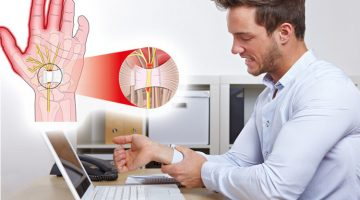 Five Ways to Prevent Carpal Tunnel Syndrome