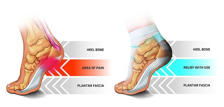 How a Tennis Ball Will Get You Rid of Plantar Fasciitis ...