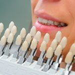 Things to Consider When You Visit Cosmetic Dentures
