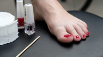 What You Didn't Know About Supplements and Toenail Fungus