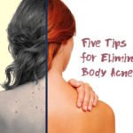 Five Tips for Eliminating Body Acne