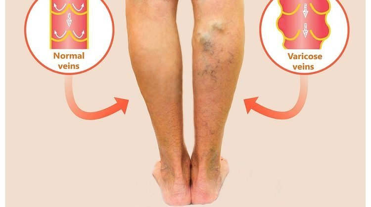 The Best Reasons to Treat Your Varicose Veins