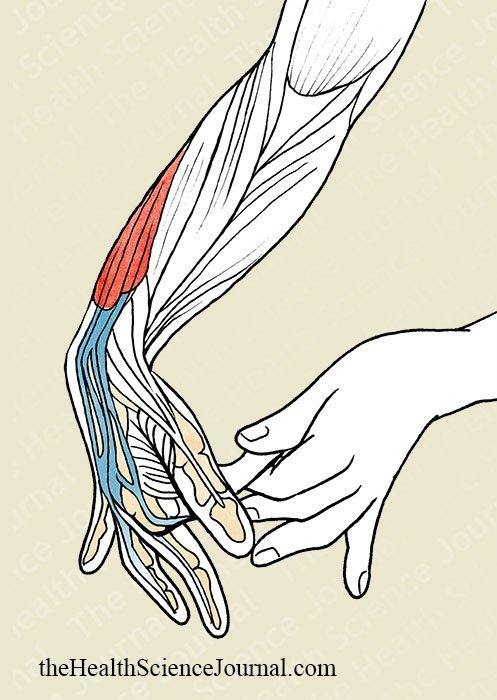 Finger by Finger Flexion With Assistance