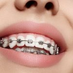 Need Braces? Try These 5 Ways to Pay for Them
