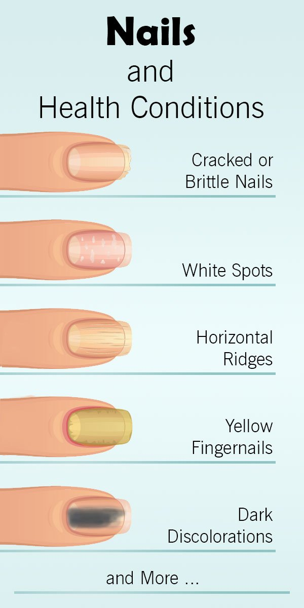 nails-health-conditions