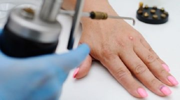 All That You Need To Know About Wart Removal Surgery