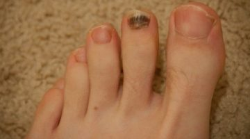 Splinter Hemorrhages: Causes and Treatments Options