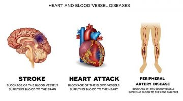 Heart and Blood Vessel Diseases – Risk Factors and Treatment