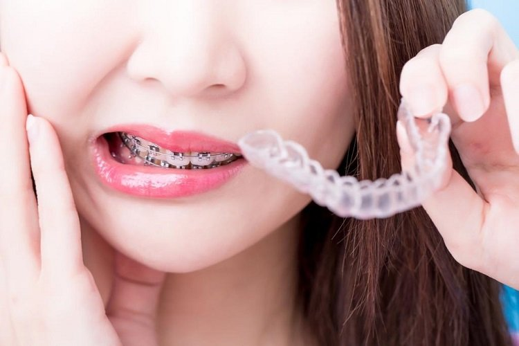 teeth-braces-dentist