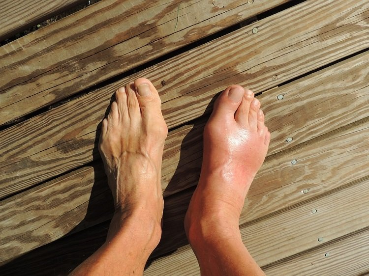 swelling-foot