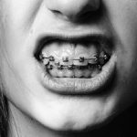 Dental-doctor-braclet-tooth-teeth